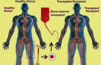 Bone Marrow Transplant