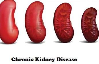 CHRONIC KIDNEY DISEASE- Everything You Need to Know!