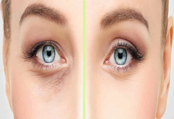 Blepharoplasty Cost in India