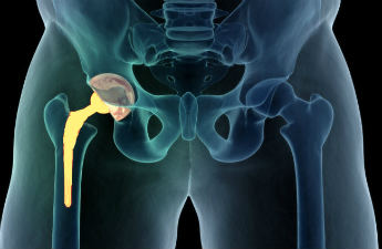 Minimally Invasive Hip Replacement Surgery – Symptoms, Approach, Management and More