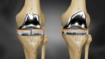 Knee Replacement Implants