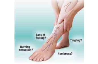 Effective Treatment options for Peripheral Neuropathy