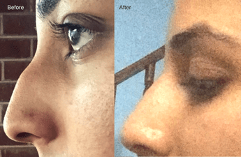 Patient story - Browplasty - Forehead Lift