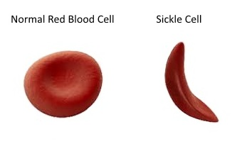Everything About Sickle Cell Disease