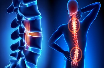 Spine Surgery in India